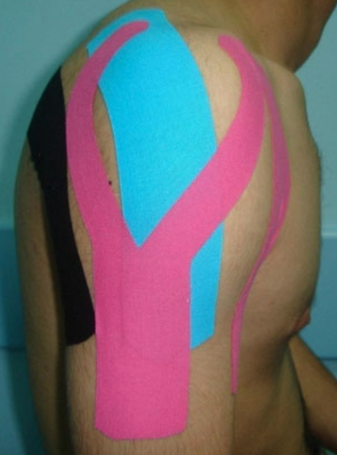 kinesoo tape subluxed shoulder kaya method