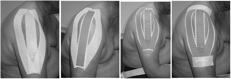 kinesio tape subluxed shoulder california tri-pull method